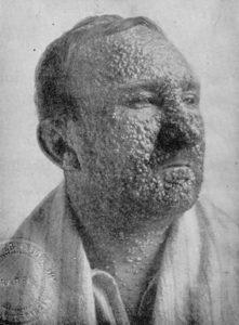 Smallpox Sufferer