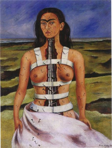 A Few Small Nips (1935) - Frida Kahlo