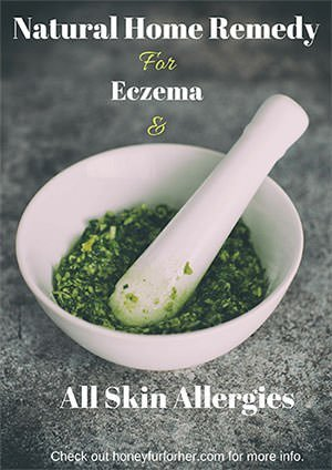 Eczema Remedies Advertisement